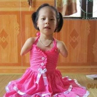 """Linh Chi - Cô bé """"không tay chân"""" kiên cường"""